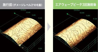 走査型共焦点レーザー顕微鏡写真